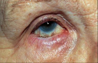 eyelid problem